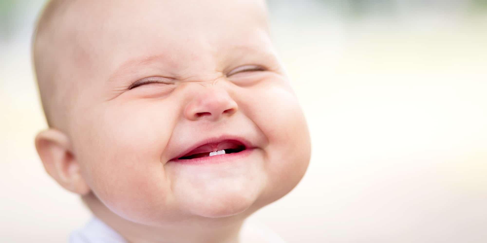 علاج قشرة الحليب عند الرضيع