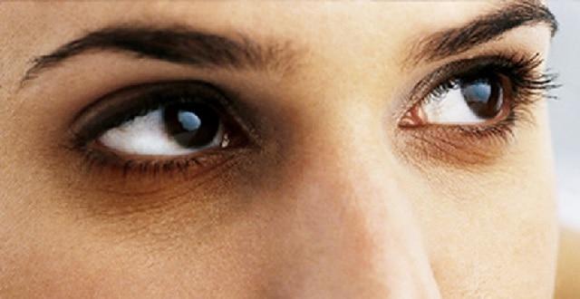 أسباب مشكلة الهالات السوداء تحت العين