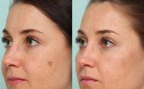 إليك 3 وصفات منزلية بسيطة للتخلص من بقع الوجه الداكنة