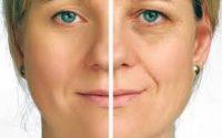 نصائح للتخلص من تجويف العينين