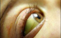 أمراض تسبب اصفرار العين.. اكتشفيها