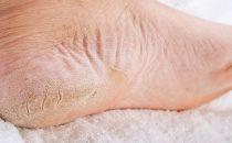 أسباب و طرق علاج تشقق القدمين