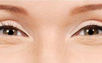 خلطات طبيعية للتخلص من تجاعيد العين
