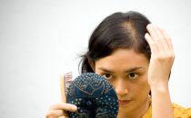 5 وصفات طبيعية لعلاج الصلع