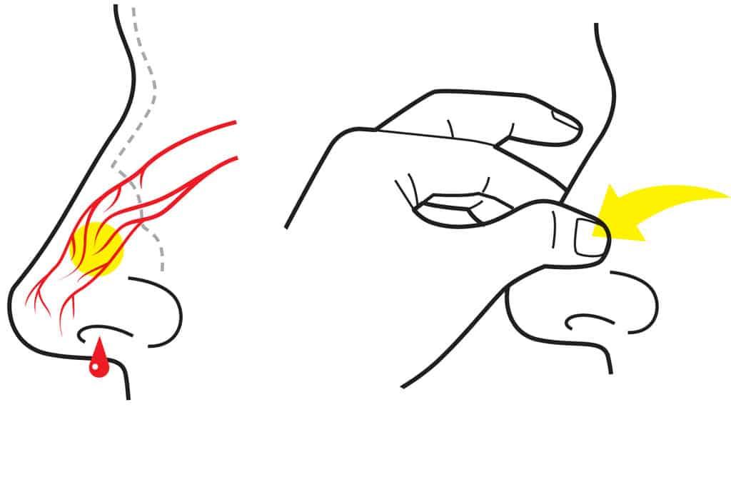 علاج نزيف الأنف