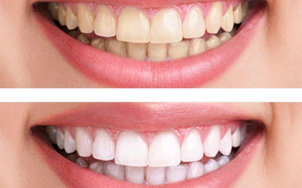 خلطة البايكنج صودا لتبييض الأسنان