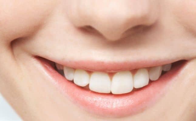 البقع الداكنة حول الفم