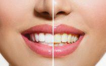 أطعمة تسبب اصفرار الأسنان