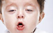 كيف تكتشفين إصابة طفلك بالسعال الديكي؟