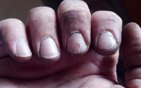 كيف نقوم بتنظيف الأظافر المتسخة بعد يوم من الأعمال؟