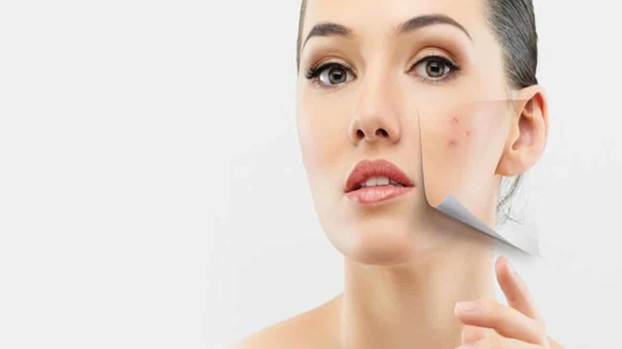 ماسكات طبيعية لإزالة البقع الداكنة في الوجه