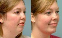 نصائح للتخلص من سمنة الوجه والرقبة
