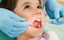 متى يجب أخذ طفلك إلى طبيب الأسنان؟