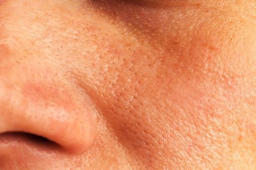 pores-agrandis-500x332-500x332