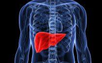 3 وصفات منزلية للوقاية من أمراض الكبد