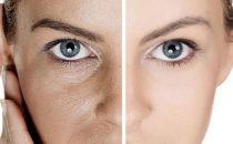 كيف نقوم بتضييق مسامات الوجه؟
