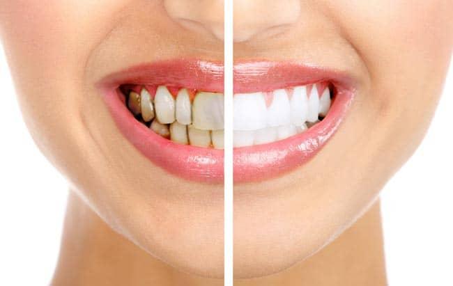 وصفات طبيعية تخلصك من اصفرار الأسنان والتهابات اللثة