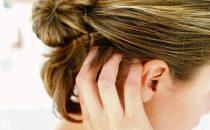 تخلصي من قشرة الشعر باستخدام إحدى هذه الوصفات