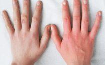 وصفات  طبيعية لتسمين اليدين