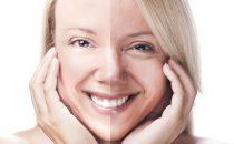 كيف أحمي بشرتي من الشيخوخة المبكرة؟