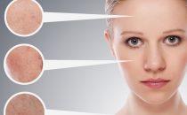 وصفات طبيعية لعلاج البشرة الدهنية