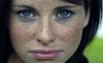 وصفات منزلية لإزالة النمش من الوجه
