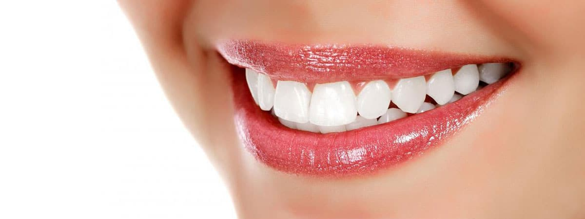 وصفات طبيعية لتبييض الأسنان