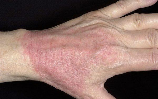 كيف تعالجين مرض الصدفية في المنزل؟