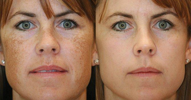حلول طبيعية لإزالة البقع التي تظهر على الوجه
