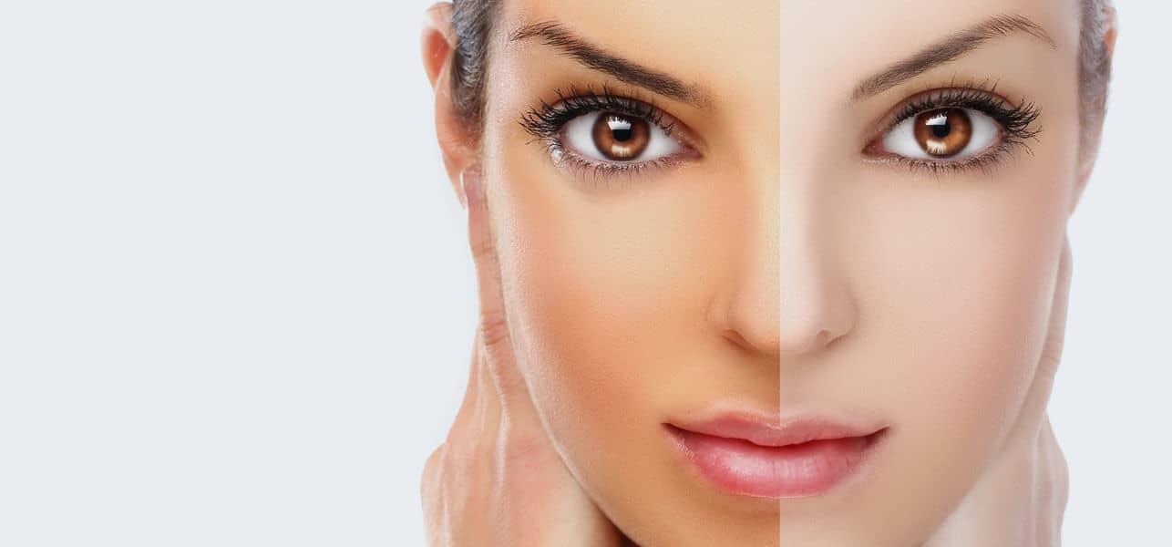 هذه المكونات ستساعدك على تفتيح بشرتك