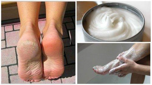 Eliminez-mycoses-et-cors-des-pieds-avec-ce-remede-naturel-500x281-500x281