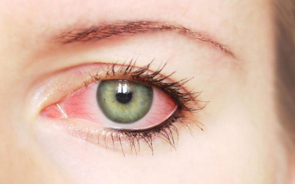 تخلصي من التهاب العين باستخدام هذه المكونات الطبيعية