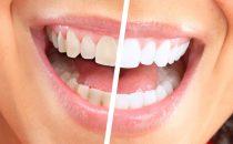 جربي وصفات تبييض الأسنان الطبيعية