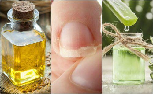 Comment-soulager-les-ongles-cassés-avec-ces-5-remèdes-dorigine-naturelle