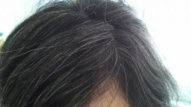 5 أسباب لظهور الشيب في شعر الرأس بشكل مبكر.. تجنبيها