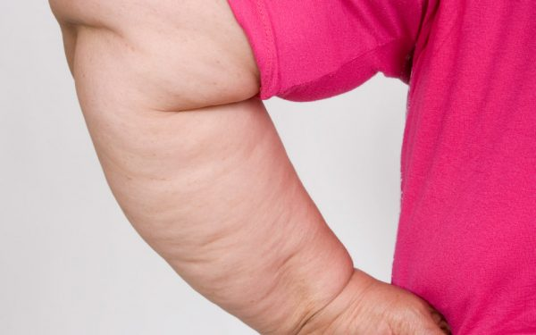 وصفات طبيعية لشد ترهلات الذراعين
