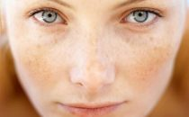 هذه المكونات المنزلية تقضي على البقع الصعبة في الوجه