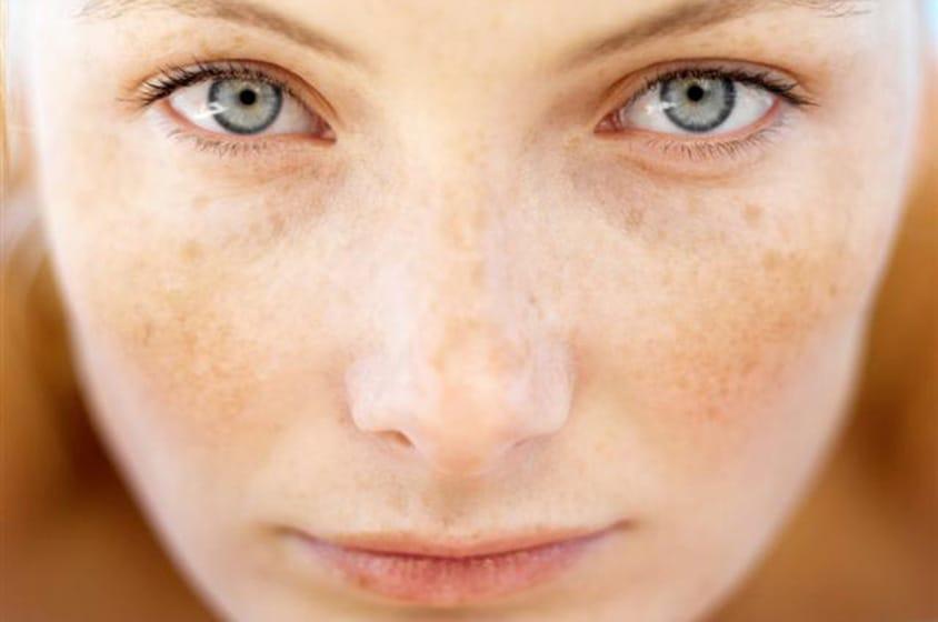 علاج البقع في الوجه