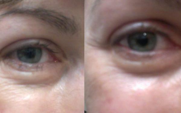 مكونات سهلة وفعالة للحد من انتفاخ العينين والهالات السوداء