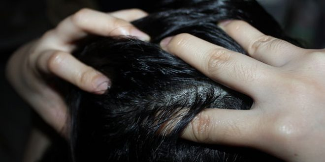إزالة صبغة الشعر