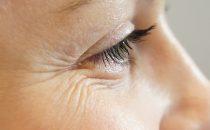 خلطات طبيعية لعلاج تجاعيد العينين
