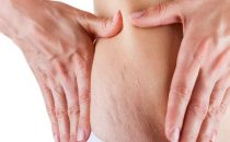 وصفات زيت الزيتون لعلاج علامات تمدد الجلد