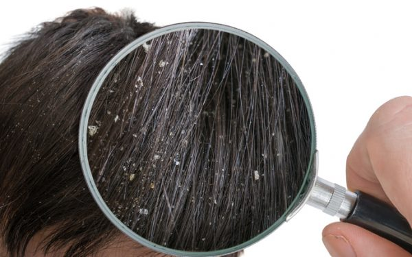 تخلصي من قشرة الشعر بهذه المكونات البسيطة