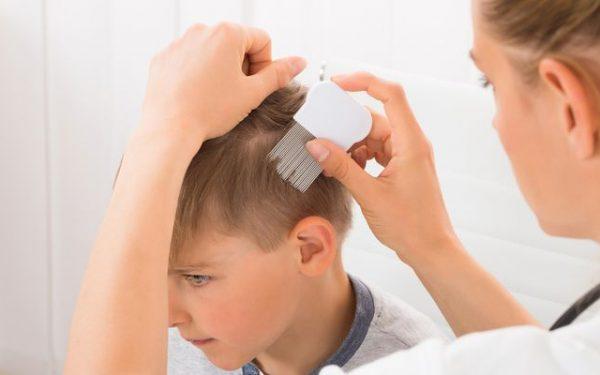 اكتشفي أسباب تساقط الشعر عند الأطفال