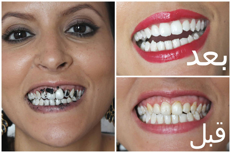 جربي أفضل الخلطات الطبيعية لتبييض الأسنان