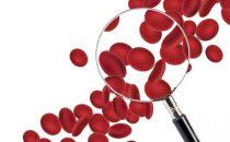 مشروبات طبيعية لعلاج فقر الدم