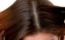 وصفات سهلة للتخلص من قشرة الشعر