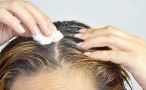 وصفات طبيعية لعلاج التهاب فروة الرأس