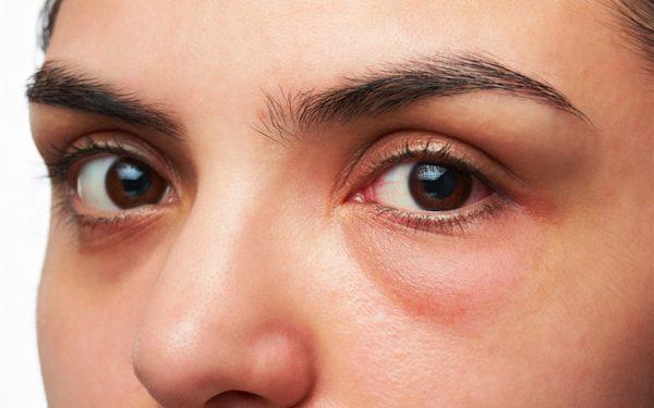 علاجات فعالة للتخلص من انتفاخ العينين