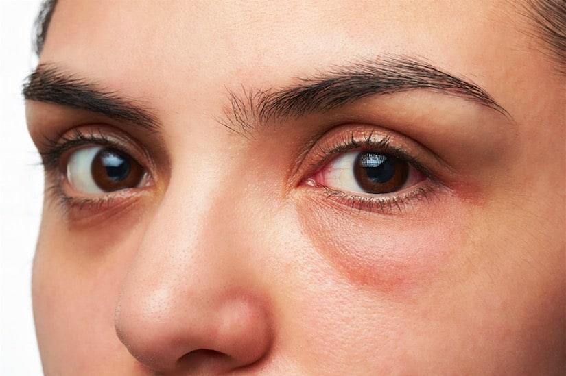 علاجات فعالة للتخلص من انتفاخ العينين مجلة سيدات الامارات